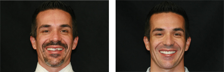 Before and after photo of Billy and his fixed broken teeth