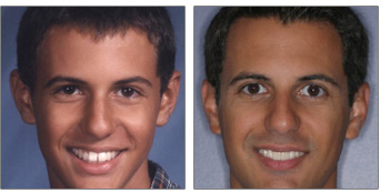 paul before and after orthodontic work
